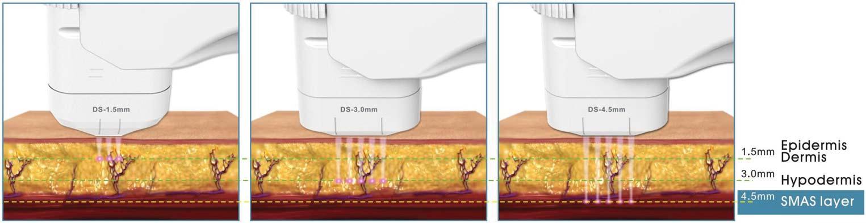 HIFU prof. fókuszált ultrahangos arckezelőgép - kezelőfejek